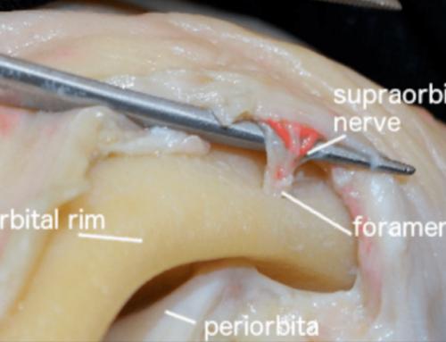 Transpalpebral orbitofrontal approach